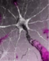 myeline.jpg